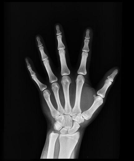 Зміни кісткової тканини
