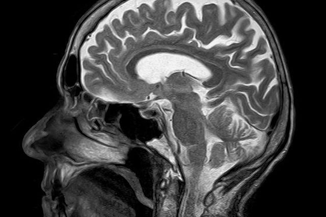Особливості рентгенологічного обстеження хворих із синдромом плеврального випоту(магістерська робота)